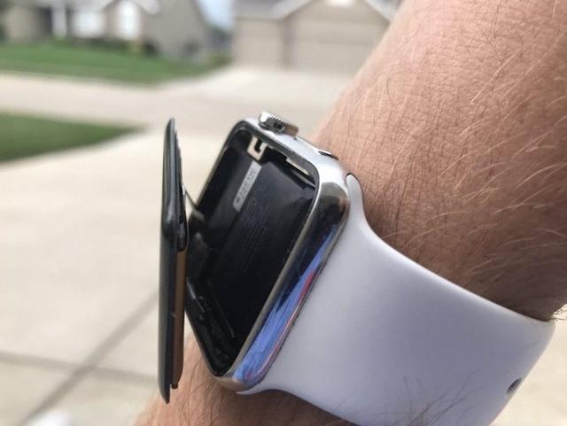 Жительница США подала в суд на Apple из-за вздувшейся батареи в Apple Watch